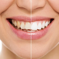 Closeup of teeth half before and half after whitening