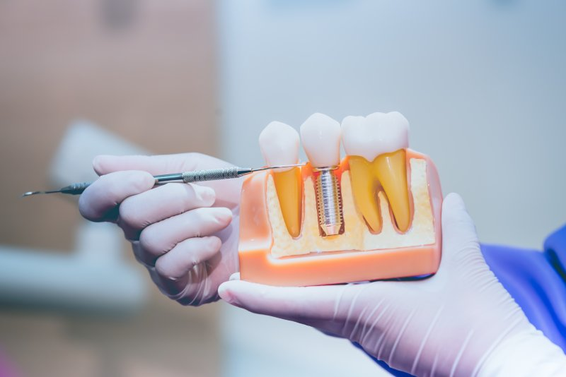 Dentist pointing to model of dental implants